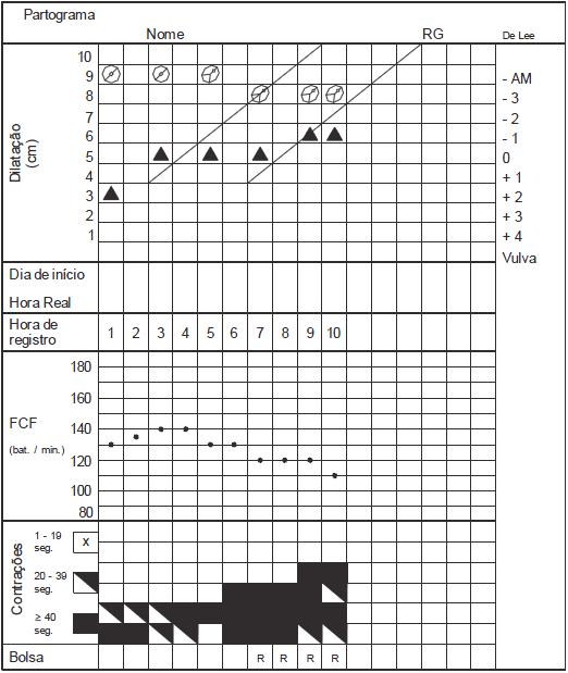 Partograma rev 13 q90