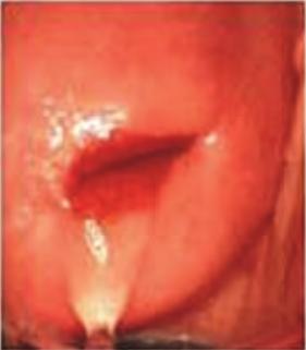 Cervix rev 13 q100