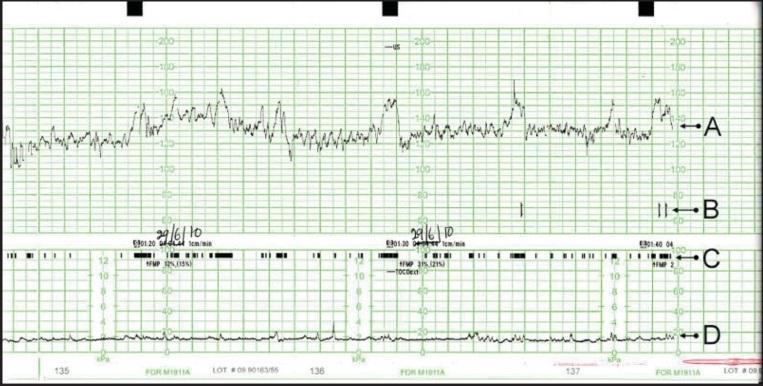 Cardiotocografia rev 12 q104 2